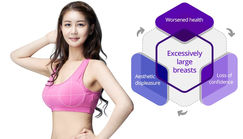 Excessively large breasts - Worsened health, aesthetic displeasure, Loss of confidence