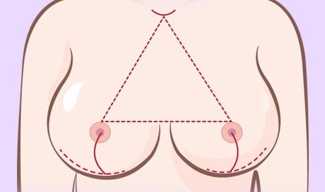 Beautiful proportions of the breast determine the shape of the beautiful breast: the collarbone and the nipple, the distance between the nipple and the nipple, and the position of the nipple along the under-breast line.