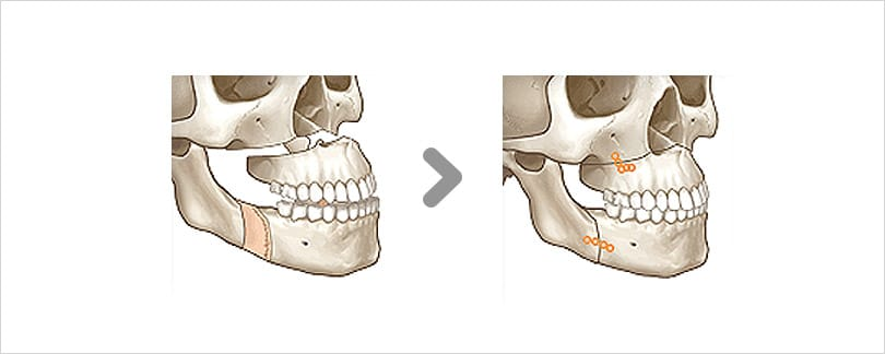 Two jaw surgery for lantern jaw includes teeth alignment.