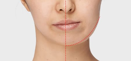 Asymmetry in facial bone structure: can be corrected with cheekbone or square jaw surgery