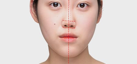Asymmetry caused by a curved nose: can be corrected with nose reshaping