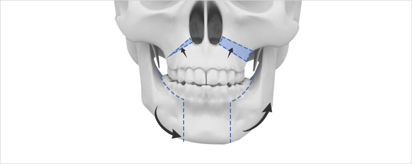 Two jaw surgery for facial asymmetry includes teeth alignment.