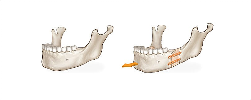 Two jaw surgery for short chin includes teeth alignment.