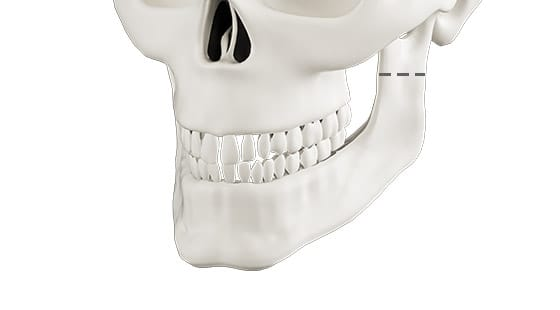 Conventional Two Jaw Osteotomy