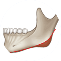 2. Long-Curve Lower Jaw Osteotomy