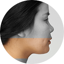 Deep-rooted facial fat tissues