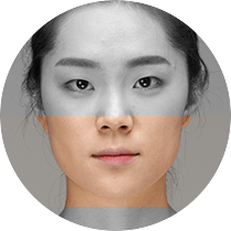 Overdeveloped facial muscle Masseter Reduction