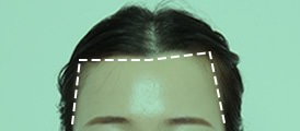 Angular or M-shaped forehead