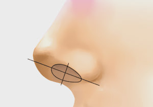 Various nasal septum types - case 3