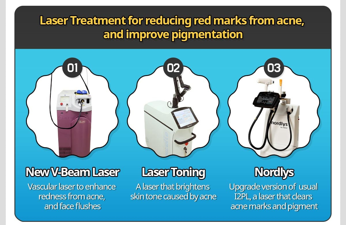 Laser Treatment for reducing red marks from acne, and improve pigmentation