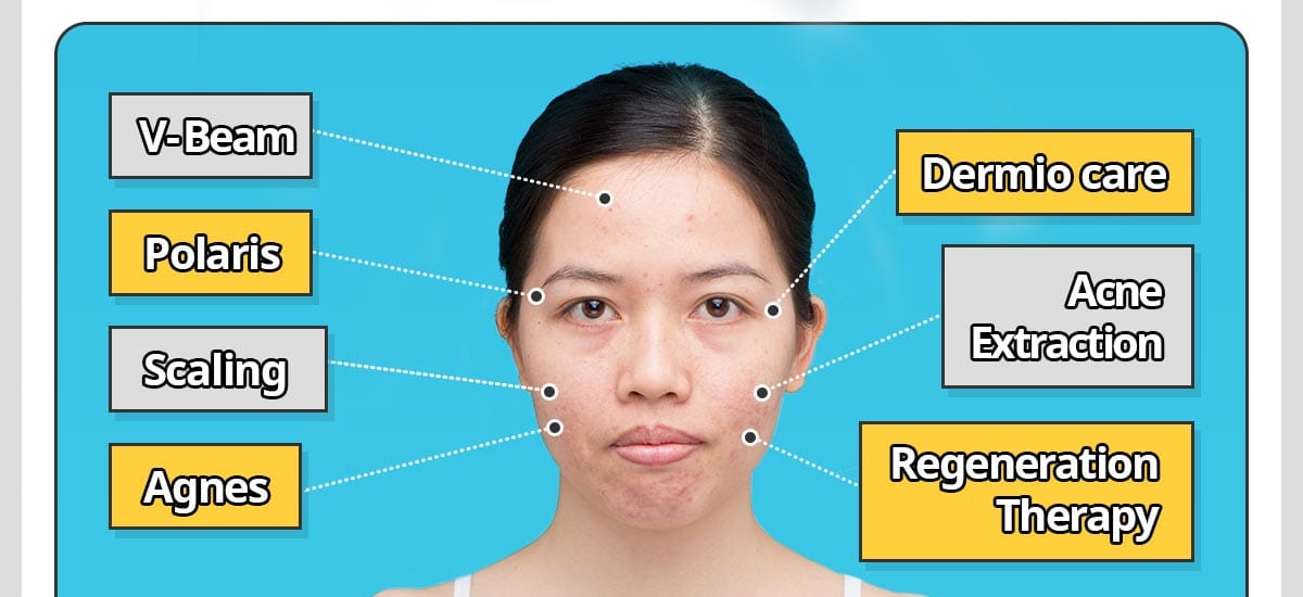 V-Beam, Polaris, Scaling, Agnes, Dermio care, Acne Extraction, Regeneration Therapy