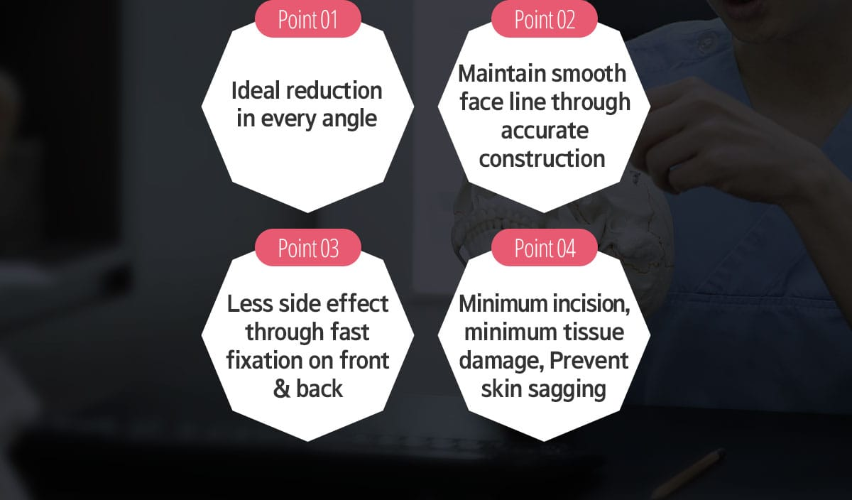 Point 01 Ideal reduction in every angle, Point 02 Maintain smooth face line through accurate construction, Point 03 Less side effect through fase fixation on front & back, Point 04 Minimum incision, minimum tissue damage, Prevent skin sagging