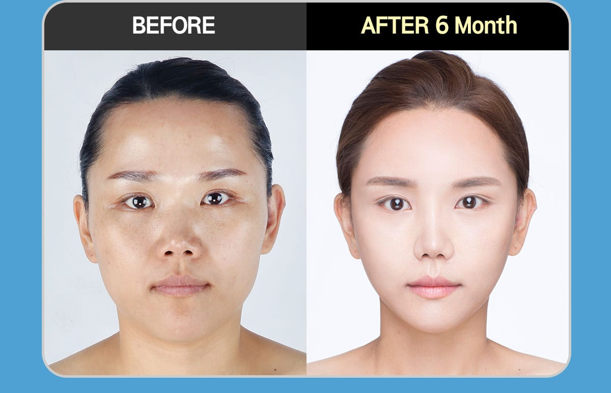 1 Year Face Contouring Consulting with Dr. Park JongLim BEFORE & ATER 6 Month