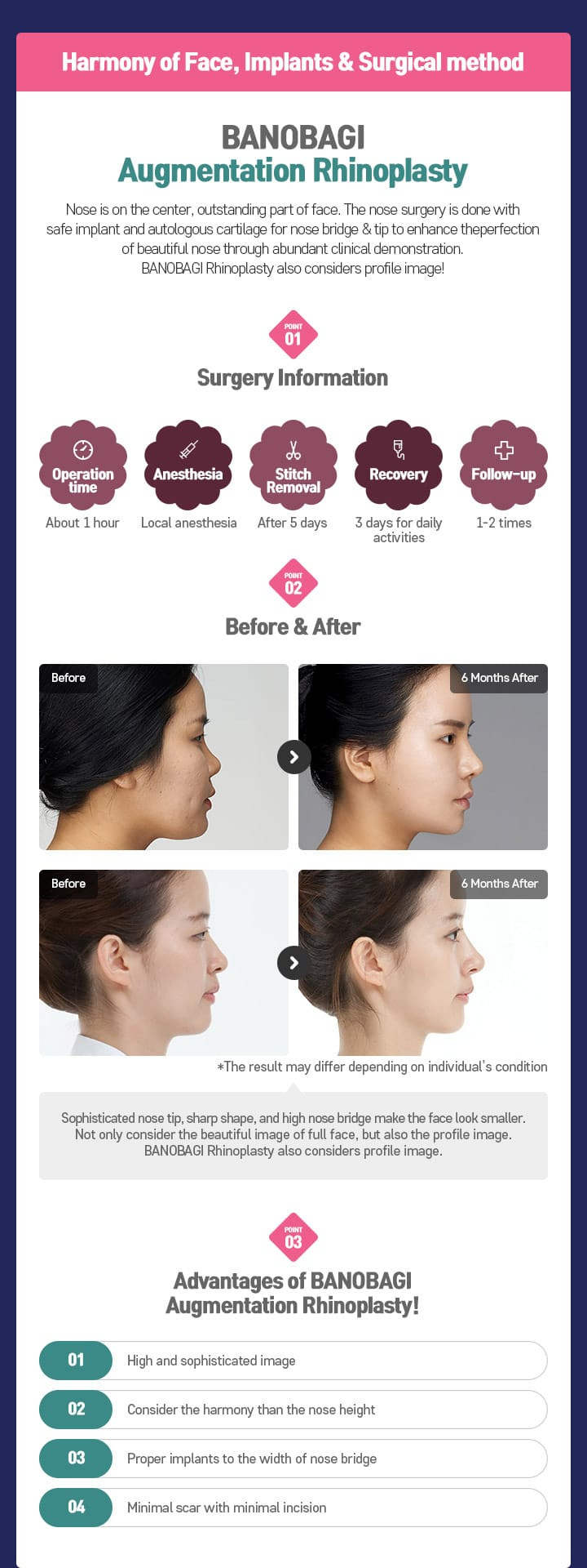 Harmony of Face, Implants & Surgical method