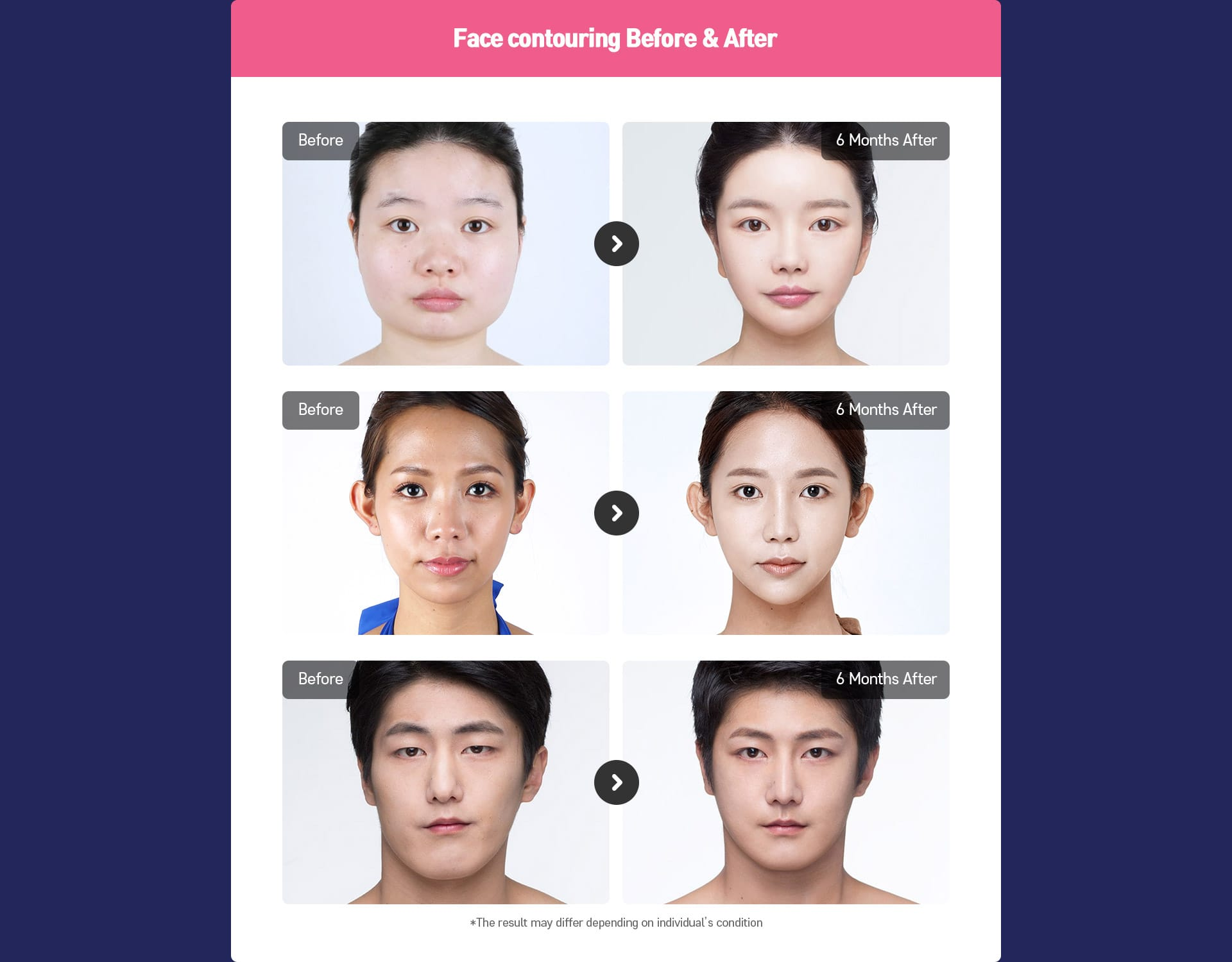Face contouring Before&After