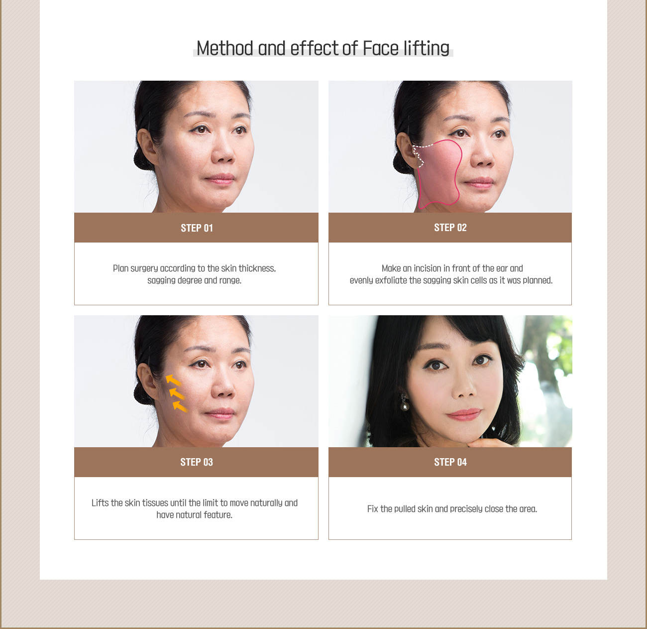 methid and effec of face lifting