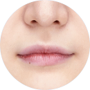 Thin and undefined lip line