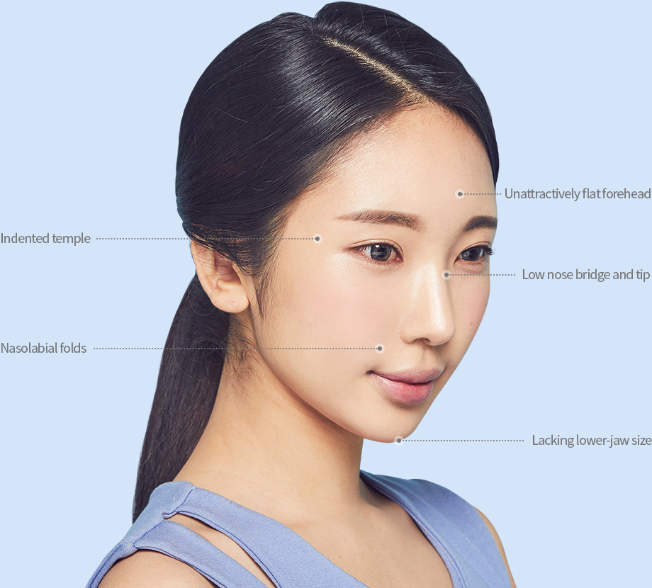 Unattractively flat forehead - Indented temple - Low nose bridge and tip - Nasolabial folds - Lacking lower-jaw size