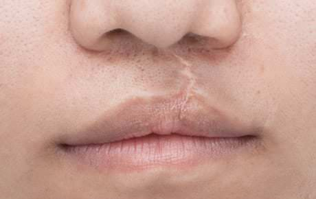 Structural transformation in the lips