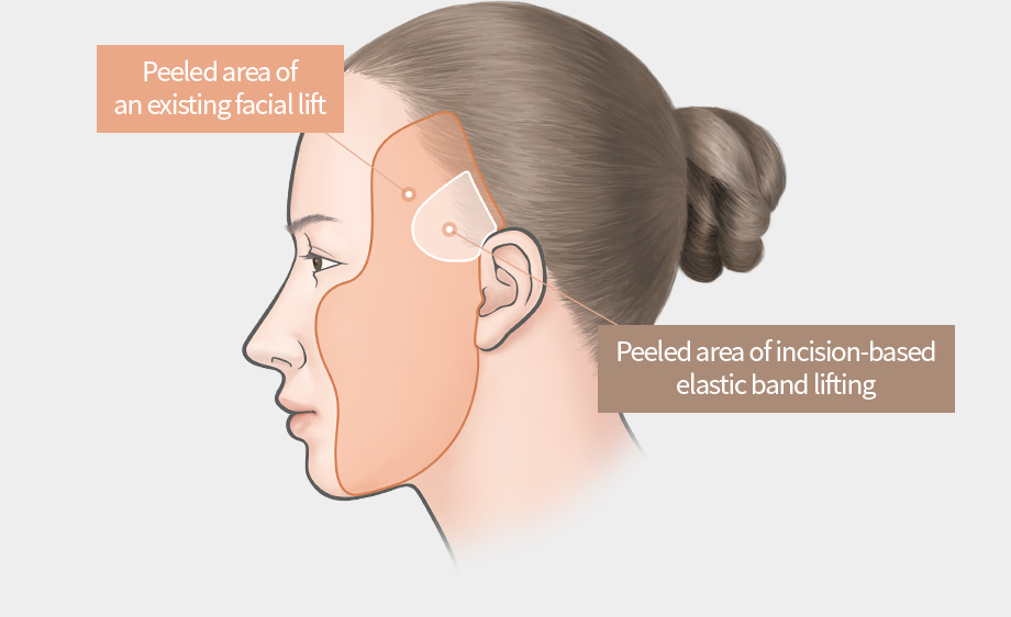Elastic Band Lifting (Incision) - Peeled area of an existing facial lift, Peeled area of incision-based elastic band lifting