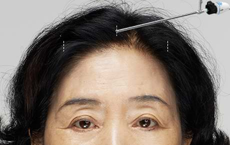 02 The sagging forehead is evenly peeled, while the locations of nerves and blood vessels are monitored real-time with the endoscope.