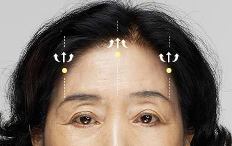 03 Endotine is placed on the skull or on deep myofascia. The loose forehead skin is pulled, factoring in eyebrow locations and forehead wrinkles, and fixed onto Endotine.
