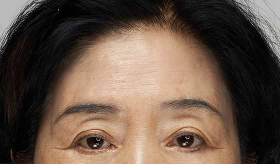 Darker impressions because of overall upper face wrinkles