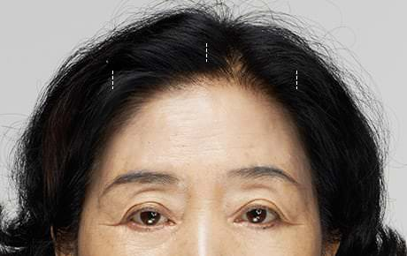01 A relatively small incision is made within the hairline to hide any post-surgery scar.