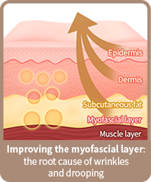 Improving the myofascial layer: the root cause of wrinkles and drooping