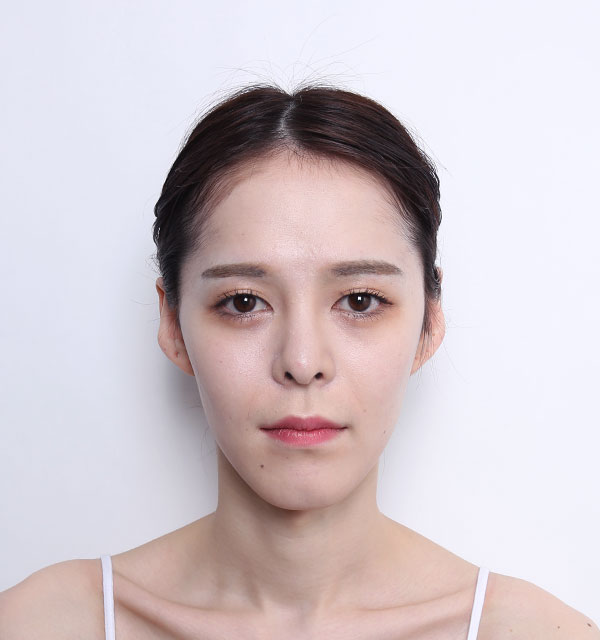 Front Face contouring(Square jaw, Zygoma, Genioplasty)+Fat grafting on forehead+Rhinoplasty revision(bridge, tip)