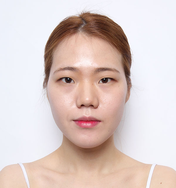 Front Face contouring(Square jaw, Zygoma, Genioplasty)+Eyes (Partial incisional, Epicanthoplasty)+Nose(bridge, tip)+Fat grafting on forehead