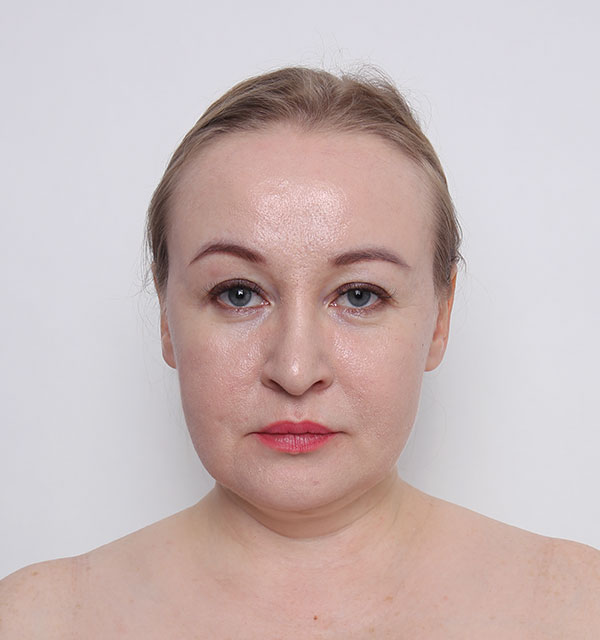 Front Mint lifting, Non-incisional V lifting, Accusculpt(cheek and double chin)