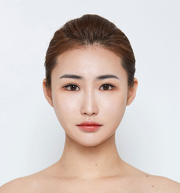 Front Face contouring(Square jaw, Zygoma, Genioplasty)+Eyes (Non-incisional method double eyelid surgery with ptosis correction, Lower Canthoplasty)