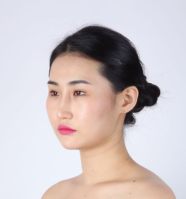 45º Face contouring(Square jaw, Zygoma, Genioplasty)+Eyes (Non-incisional method double eyelid surgery with ptosis correction, Lower Canthoplasty)