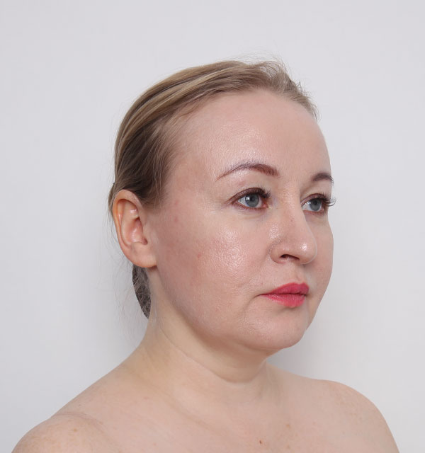 45º Mint lifting, Non-incisional V lifting, Accusculpt(cheek and double chin)