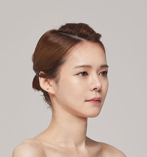 45º Face contouring(Square jaw, Zygoma, Genioplasty)+Fat grafting on forehead+Rhinoplasty revision(bridge, tip)