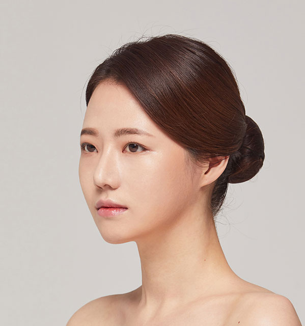 45º Face contouring(Square jaw, Zygoma, Genioplasty)+Eyes (Partial incisional, Epicanthoplasty)+Nose(bridge, tip)+Fat grafting on forehead