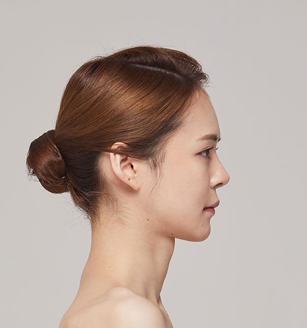 Profile Face contouring(Square jaw, Zygoma, Genioplasty)+Fat grafting on forehead+Rhinoplasty revision(bridge, tip)