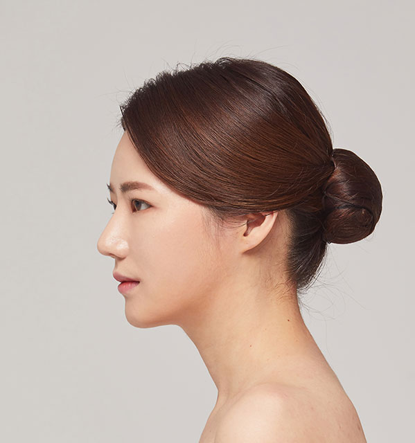 Profile Face contouring(Square jaw, Zygoma, Genioplasty)+Eyes (Partial incisional, Epicanthoplasty)+Nose(bridge, tip)+Fat grafting on forehead