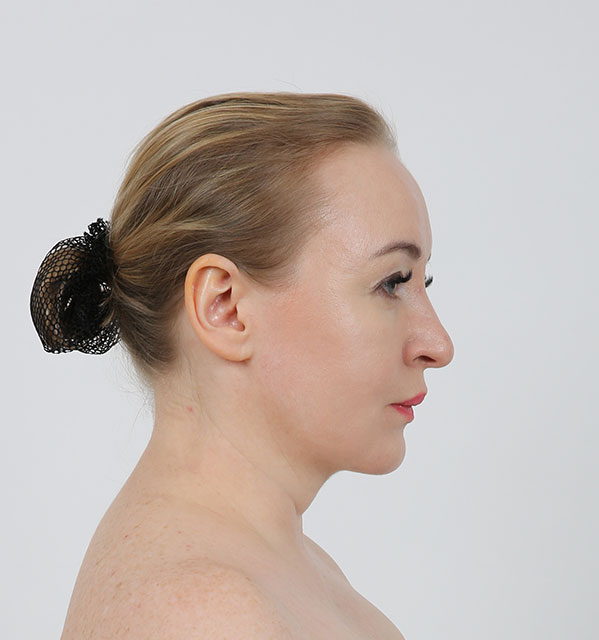 Profile Mint lifting, Non-incisional V lifting, Accusculpt(cheek and double chin)