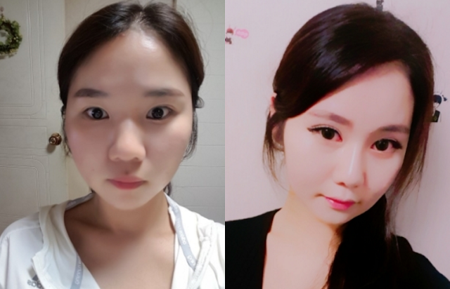 Heeya's Plastic Surgery Real Review