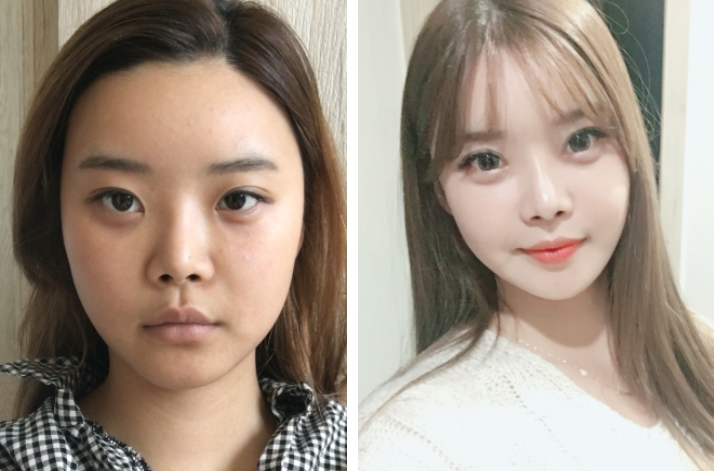 Yepoong-ee's Plastic Surgery Real Review