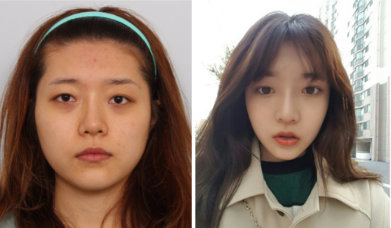 Hyoni's Plastic Surgery Real Review